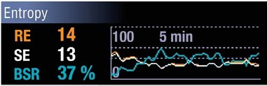 Burst Suppression Ratio (BSR) can be selected